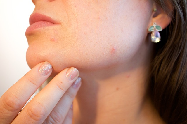 akné na tváři